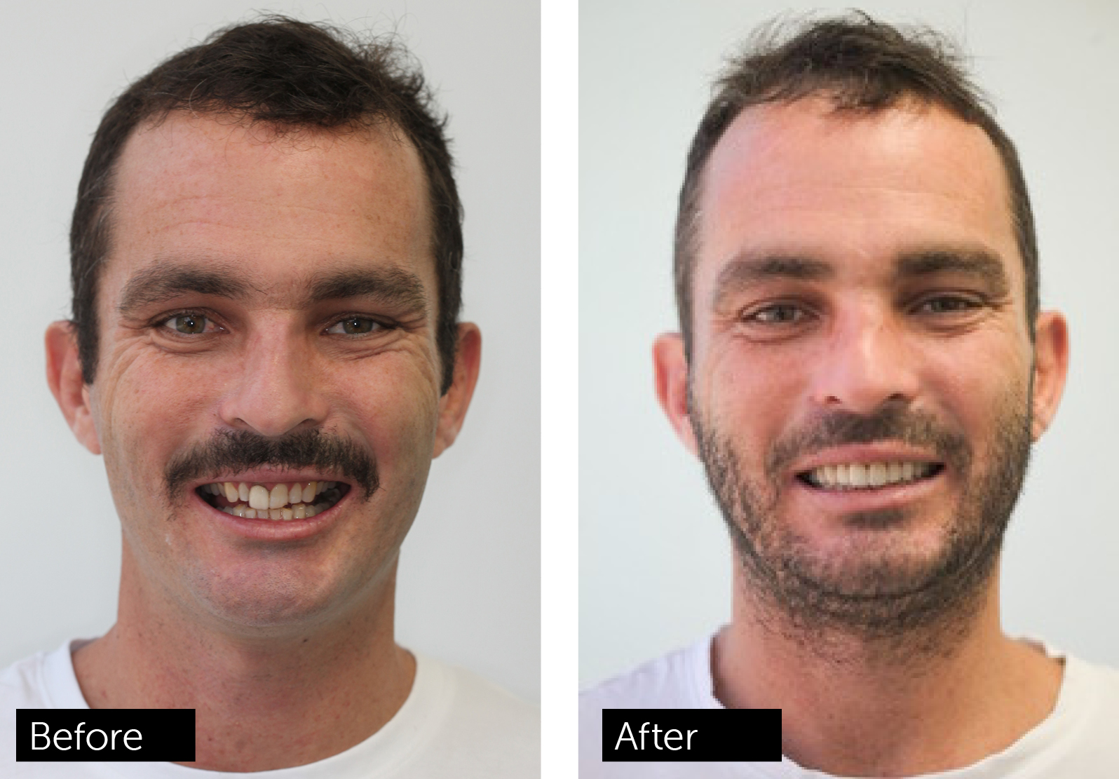 Chris Wynne Before after
