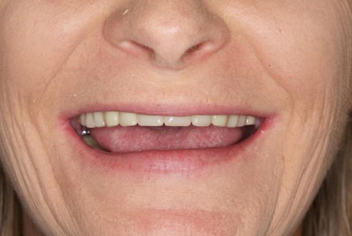 New teeth black bar4